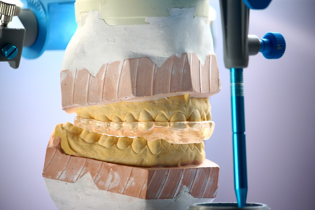 ferulas dentales